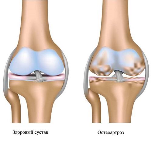 Особливості остеоартрозу